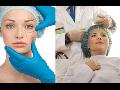 Odstranění vrásek - aplikace botulotoxinu Praha