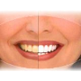Bělení zubů, Zlín, Otrokovice