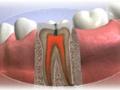 Endodoncie, l��ba ko�enov�ch kan�lk�, Zl�n, Otrokovice