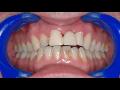Dentální hygiena Praha 4