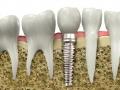 Zubn� implant�ty Praha 4