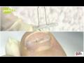Nehtové špony, rovnátka, zarostlé nehty Hlučín