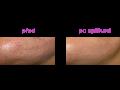 Laserové odstranění pih, bradavic, jizev, pigmentových skvrn - laserové omlazení pleti