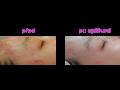 Laserové omlazení obličeje, pleti, pokožky, rejuvenace, laserová léčba akné