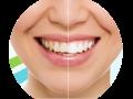 Ordinační bělení zubů Praha 4