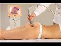 Tvarování postavy medová masáž kosmetické služby Praha