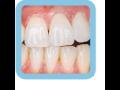 Dentální hygiena - dentální hygienistka Praha 1