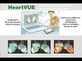 Preventivní měření, odstranění stresu, diagnostika srdce Přerov