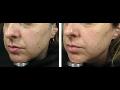 Laserov� operace, vyhlazen� vr�sek, operace k�e�ov�ch �il, kosmetika Moravsk� Bud�jovice