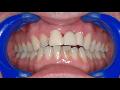 Dent�ln� hygiena, preventivn� stomatologie Praha 4