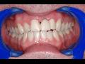 Dentální hygiena, preventivní stomatologie Praha 4