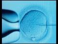Odborná léčba neplodnosti, umělé oplodnění, asistovaná reprodukce