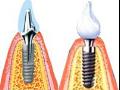 Zubné implantáty, implantácia zubov - dentálna klinika Rafael Zlín