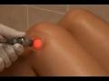 L��ba laserem a prov�d�n� fototerapie Praha