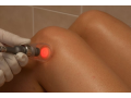 Fototerapie vy�e�� bolesti kloub�, z�n�ty sval� i �lach.