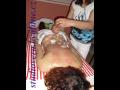 Lymfodrenáž, lymfatická masáž pro detoxikaci těla, baňkování