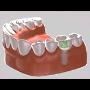 n�hrada jednoho zubu implant�tem
