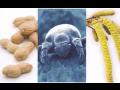 Vyšetření, test intolerance potravin – zjištění potravní nesnášenlivosti