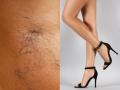Sklerotizace – odstranění žilek na nohách Praha – krásné nohy bez chybičky