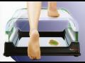 Počítačová analýza chůze - vyšetření chodidel, které odhalí příčiny a vyřeší bolest