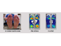 Vyšetření chodidel, které odhalí příčiny a vyřeší bolest Jeseník
