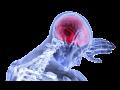 Neurologické vyšetření, neurologie Praha – diagnostika, rehabilitace
