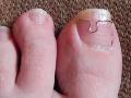 Mokrá suchá pedikúra lakování masáž peeling chodidel Litomyšl