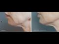 Exilis Face - facelifting Praha – omlazení obličeje, krku, dekoltu a rukou