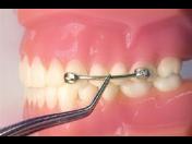 Korekce skusu - Carriere Motion Class II a III – e-shop pro ortodontické ordinace