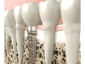 Implantologie – šetrná náhrada chybějících zubů titanovými implantáty