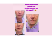 Nejjednodušší a nejdostupnější vyhlazení, odstranění vrásek za pomocí kyseliny hyaluronové