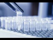 Epigenetika – obor v oblasti genetiky a dědičnosti