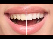 Bělení zubů nejmodernějšími technologiemi – Airflow, ordinační bělení