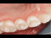 Ošetření zubních defektů bezbolestnou estetickou stomatologií – aplikace tzv. Bílých plomb