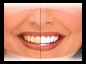Ordinační bělení zubů - profesionální vybělení zubů