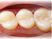 Estetické, bílé zubní výplně, plomby, ordinační bělení zubů