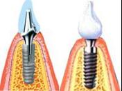 Kvalitní zubní implantáty, implantace, náhrada chybějících zubů