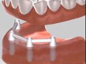 Stomatochirurgie, kompletní rekonstrukce chrupu, krásné, nové zuby