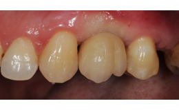 Zubní implantáty bezbolestně - aplikace Praha 4