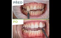 Domácí a ordinační bělení zubů
