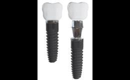 Titanové zubní implantáty