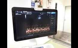 Vyšetření srdce pomocí ultrasonografie Ostrava