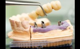 zubní implantáty pro plnohodnotný život Praha 4