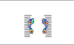 Pomoc s řešením bolestí chodidel při chůzi
