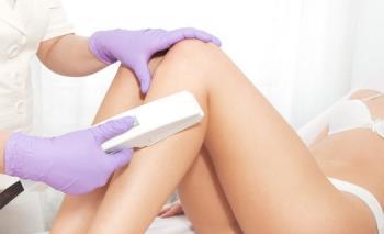 Laserová depilace - trvalá redukce nežádoucího ochlupení, Dermatologické centrum s.r.o.