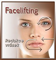 Facelifting - lifting obličeje, Ambulance estetické medicíny Nemocnice Valašské Meziříčí