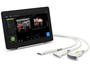 Přenosný a výkonný ultrazvukový systém, MEDATA, spol. s r.o.