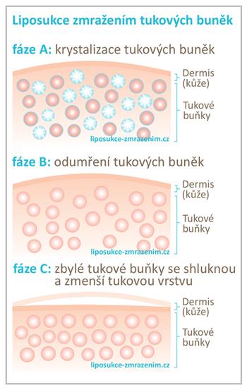 Liposukce zmražením tukových buněk
