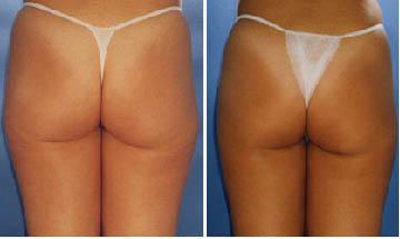 Účinné odbourání tuků a redukce celulitidy