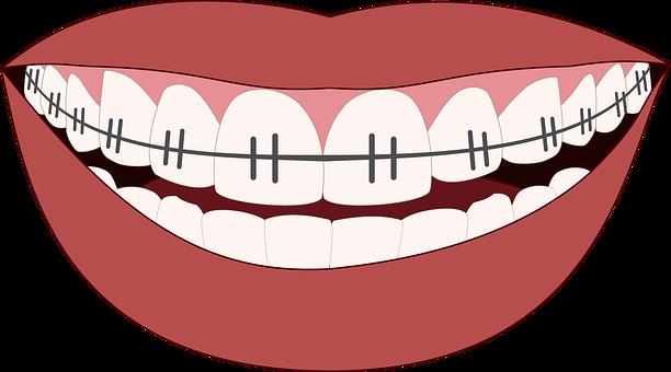 Fixní rovnátka kovová či keramická pro krásný úsměv